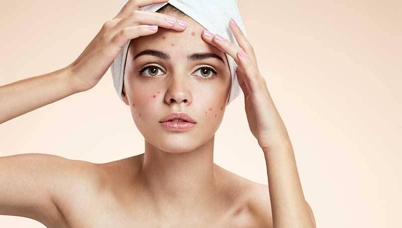 acne stockholm
