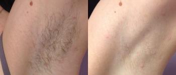 hår laserborttagning pris