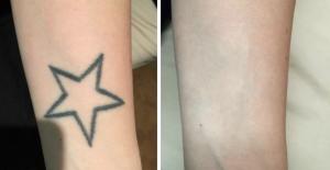 Tatueingsborttagning stockholm