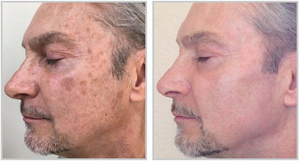Hudf 246 Ryngring Skin Rejuvenation Stockholm I Laser Och Ipl