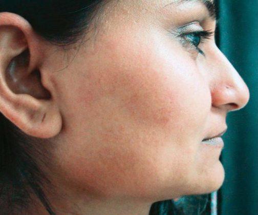 Permanent hårborttagning i stockholm