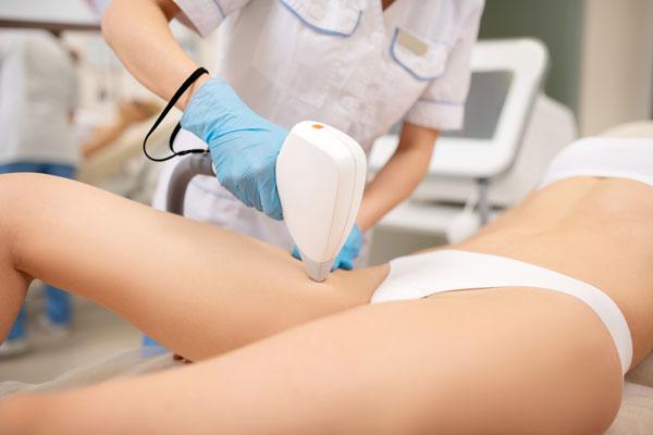 Permanent hårborttagning med laser laserklinikcenter