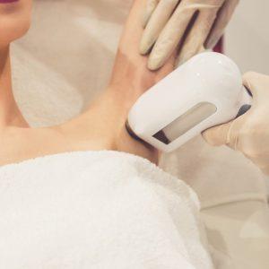 Hårborttagning med laser stockholm