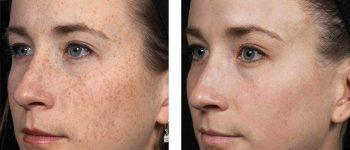 ipl hudföryngring risker