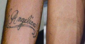 Tatueringsborttagning Stockholm