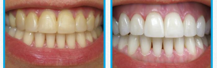 bleka tänderna uppsala