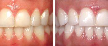 tandblekning-före-och-efter i stockholm1