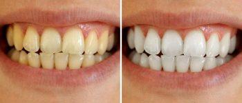 Tandblekning stockholm billig