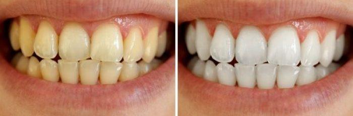 tandblekning laser pris